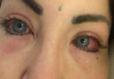 Una modelo argentina se operó para cambiar el color de sus ojos y terminó casi ciega
