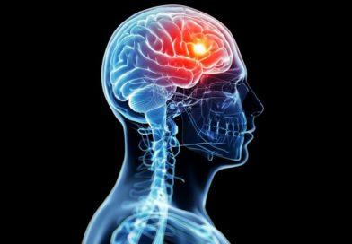 Un 'marcapasos' implantado en el cerebro frena síntomas del alzhéimer