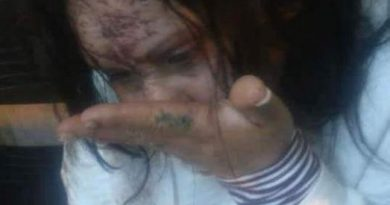 Una mujer fue brutalmente golpeada por su expareja policía en Pérez