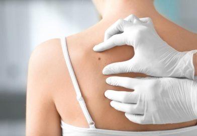 Científicos australianos desarrollan test sanguíneo para detectar el melanoma
