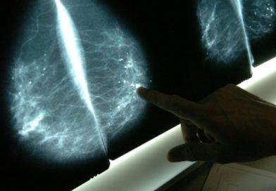 ¿En 30 años la inmunoterapia derrotará al cáncer?